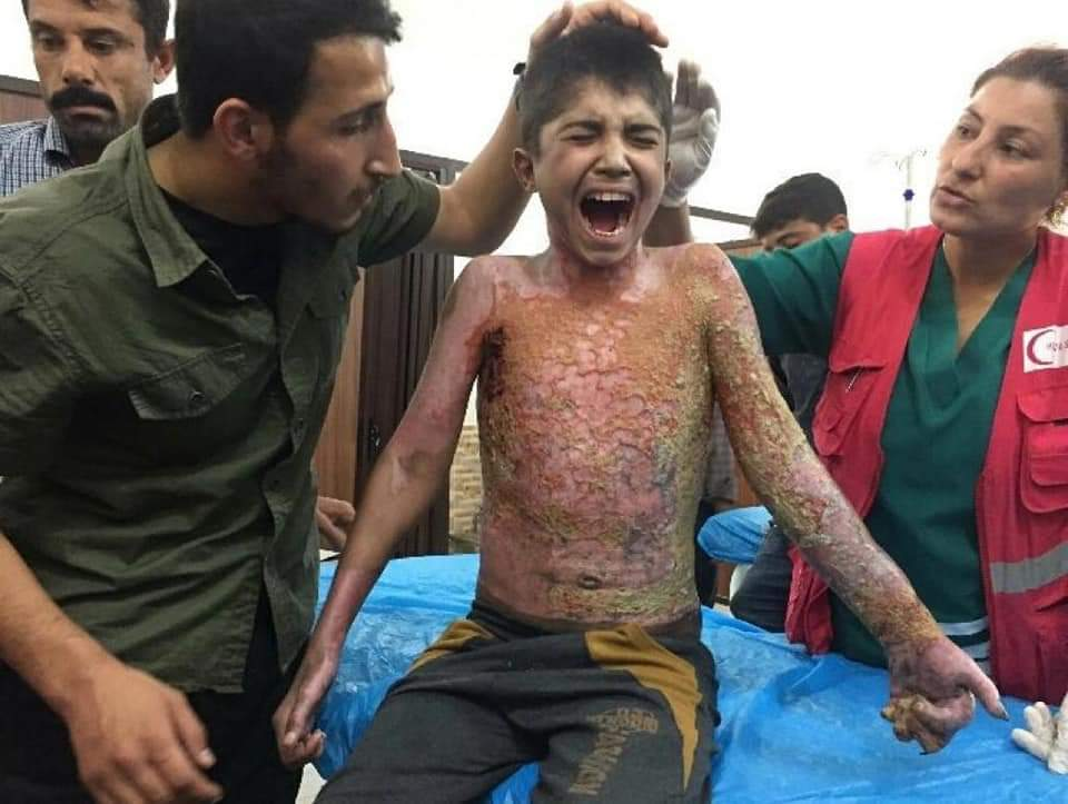 Turkey Committing War crimes in Syria. Child with burn injuries due to chemical weapons being treated in the hospital.