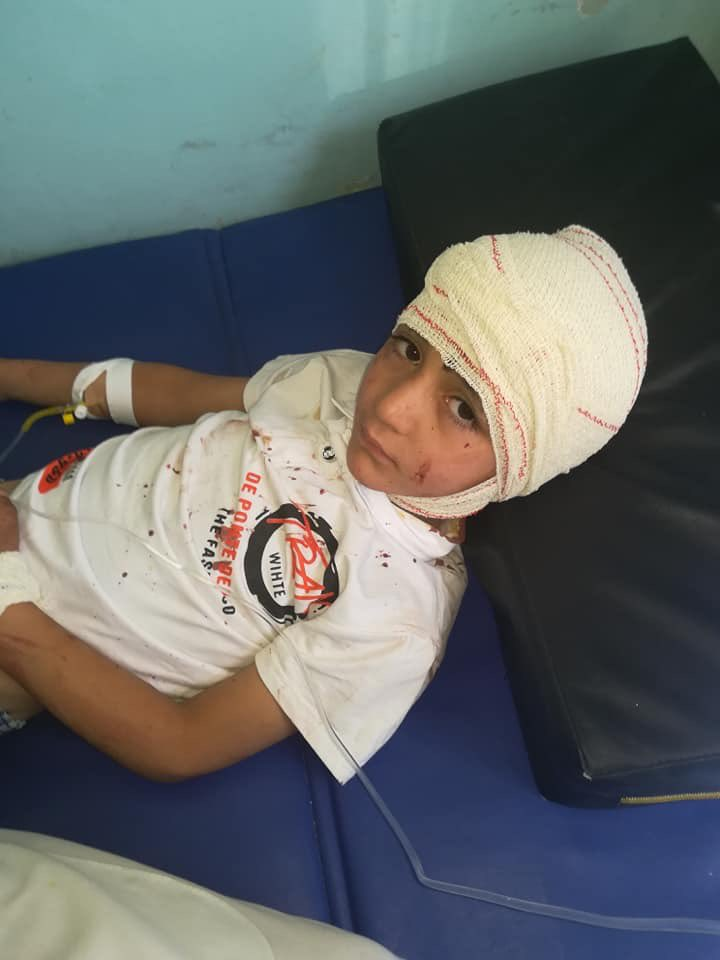 Picture of School children injured in the Ghazni Car Bomb Blast in Hospital
