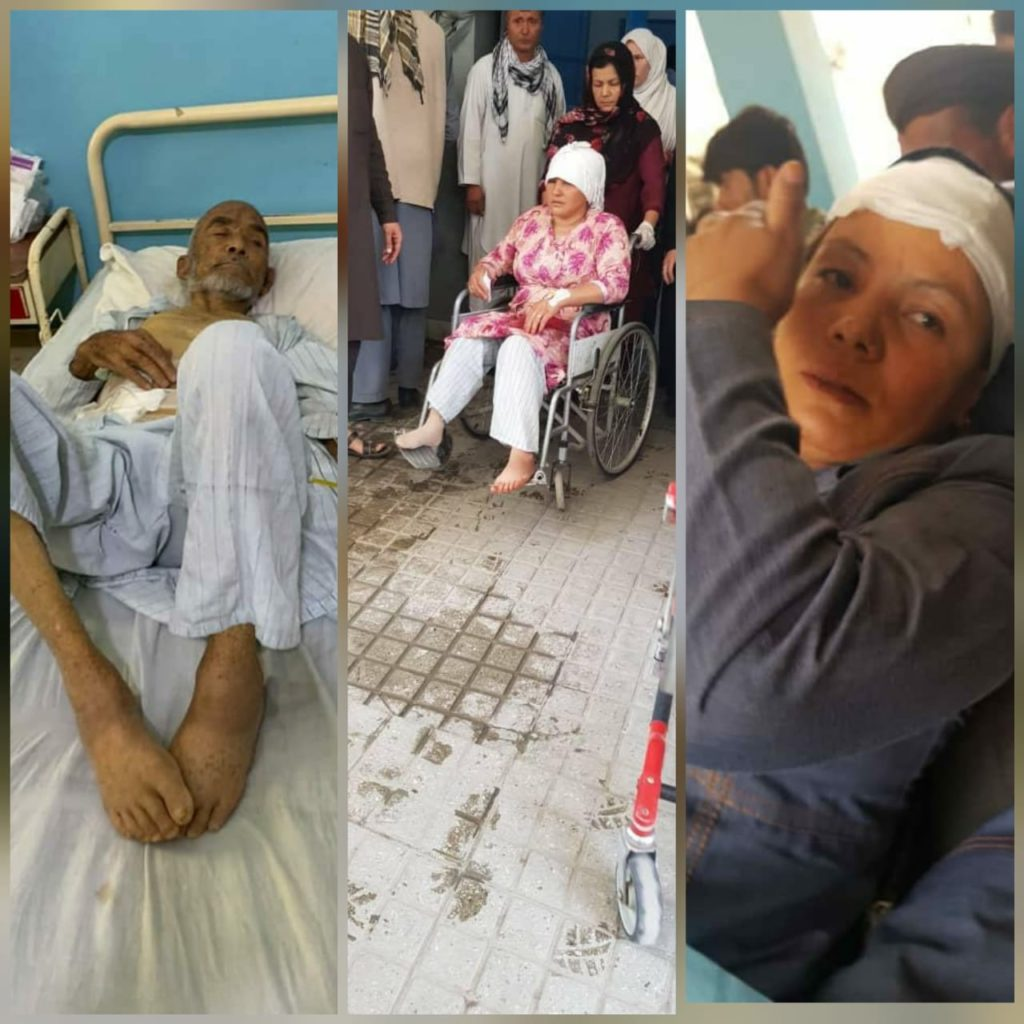 Victims of suicide bomb blast in Kabul. Are these women and old people, the security forces?