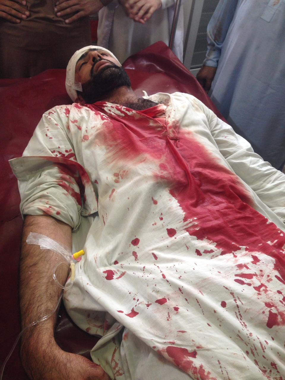 One of the Injured Doctors in Pakistan's Khyber Police Baton charge