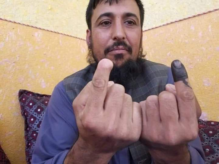 Safiullah Safi got his finger chopped by the Taliban for voting in 2014. He didn't care about getting his other fingered chopped and voted.