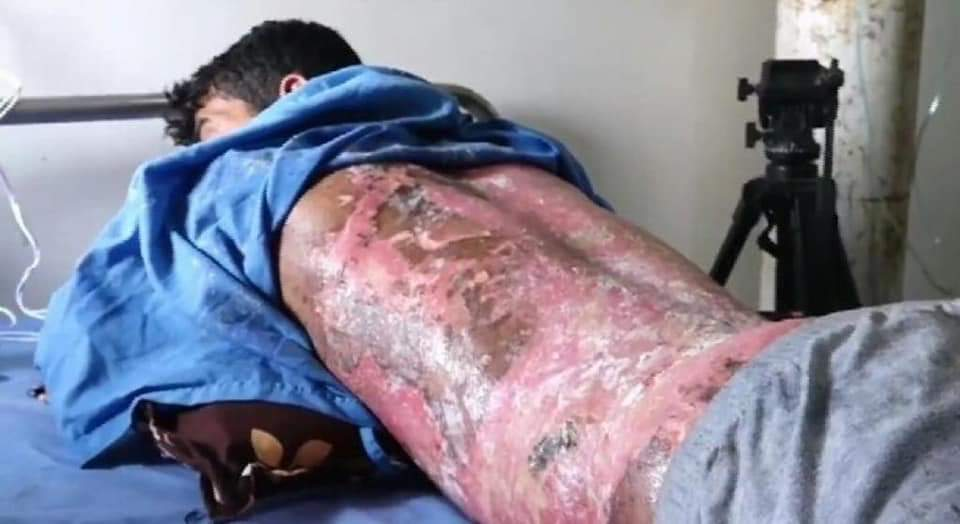 Turkey Committing War crimes in Syria. A man with burn injuries due to chemical weapons being treated in the hospital.