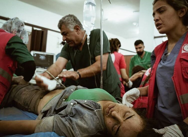 Turkey Committing War crimes in Syria. A woman with burn injuries due to chemical weapons being treated in the hospital.