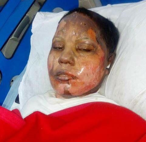Victims of Islamic Jihad: 25 year old Christian girl was set on fire after the Acid attack on her by an Islamist Radical on refusal to convert to Islam and marry him.